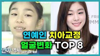 교정으로 예뻐진 연예인 top 8 !!! 이 연예인은 …