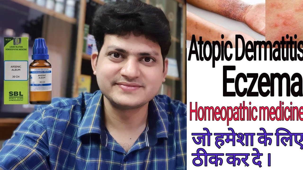 Atopic dermatitis | Homeopathic Medicine for Atopic dermatitis ?