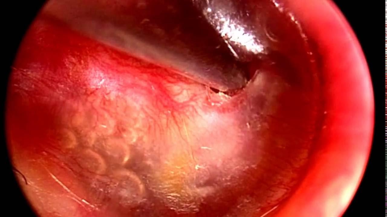 Glue Ear (otitis media with effusion) – Ear, Balance and Eustachian Tube
