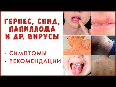Вирусы и Иммунитет. Гепатит, папилломы, спид, герпес - что надо знать