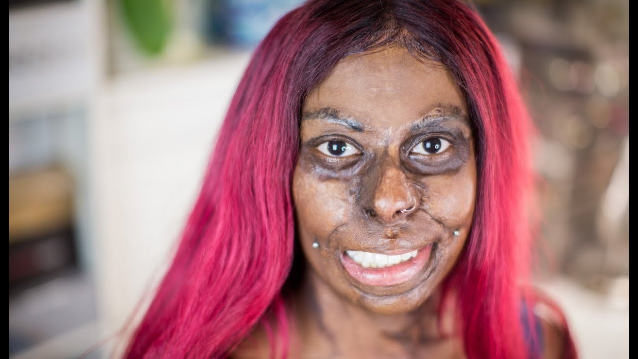mum embraces her burns scars after kerosene explosion