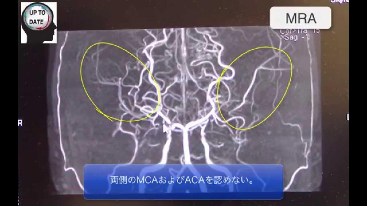 ウィリス の 動脈 輪