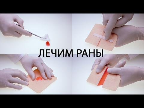 Хирург про заживление ран ( порезы, ссадины и т.д. ). Первая помощь, обработка, использование мазей. | остановить | обработать | заживление | обработка | обрабатыв | лечение | хирург | ссадин | ранах | кровь