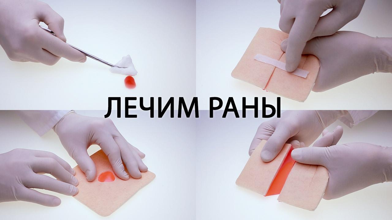 Хирург про заживление ран ( порезы, ссадины и т.д. ). Первая помощь, обработка, использование мазей.