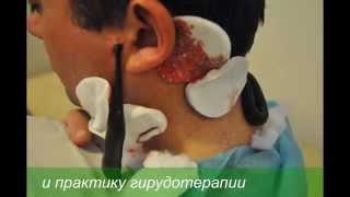 пиявки ,курсы гирудотерапии известного врача гирудотерапевта Куплевской Лидии