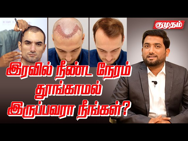 இளம் வயதில் கூட தலை வழுக்கை ஆவது ஏன்? | How to avoid Baldness? | Hair care tips |Style today|Kumudam