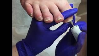 Установка BS пластины на вросший ноготь в СПб