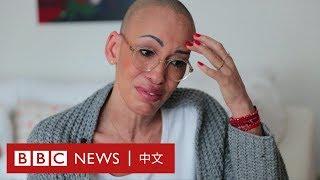 混血兒的身份 如何讓白血病患者更難獲得救治?- BBC News 中文