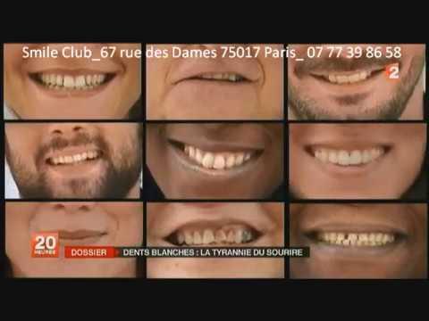 France 2 _ Différences entre bar à sourire & dentiste