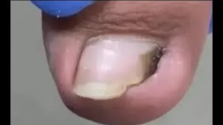 Huge relief after nail side wall clean