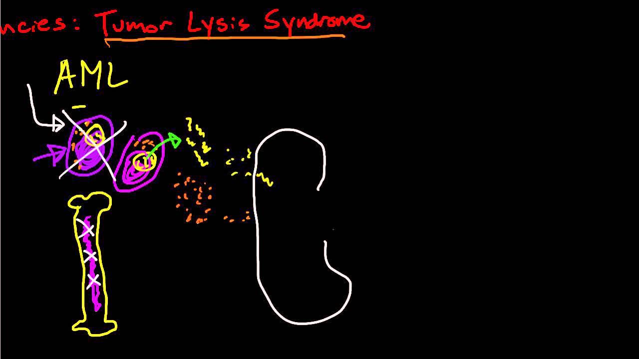Oncologic Emergencies  Tumor Lysis Syndrome