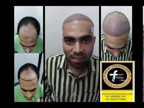face value hair transplant FUE/cheap & best