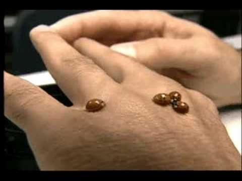Asian lady beetles bite pics 165