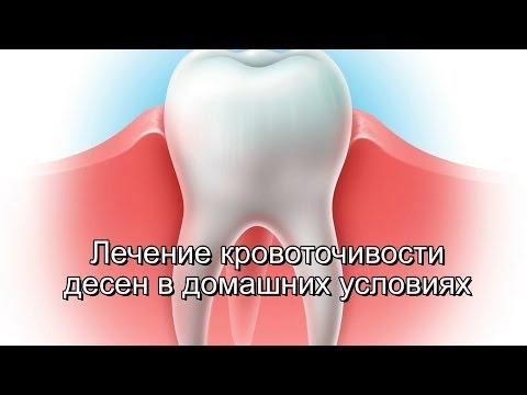 Ополаскиватель для полости рта «Листерин»: отзывы