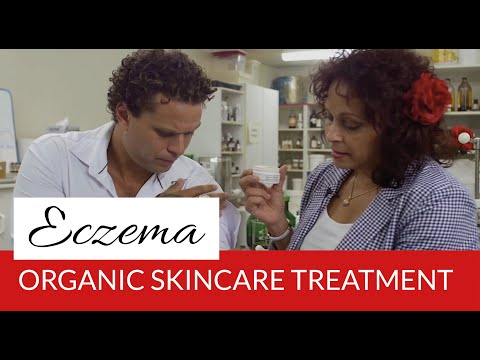 Organic Eczema Treatment