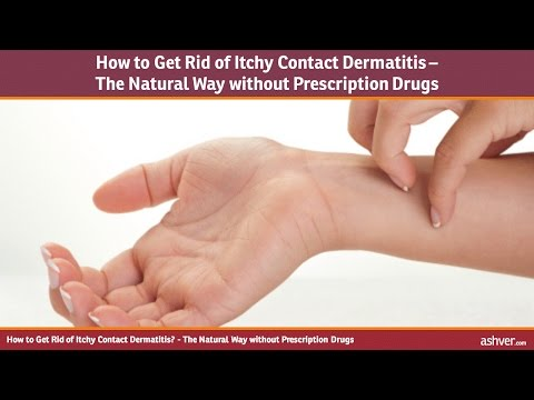 How to Get Rid of Itchy Contact Dermatitis - The Natural Way without Prescription Drugs