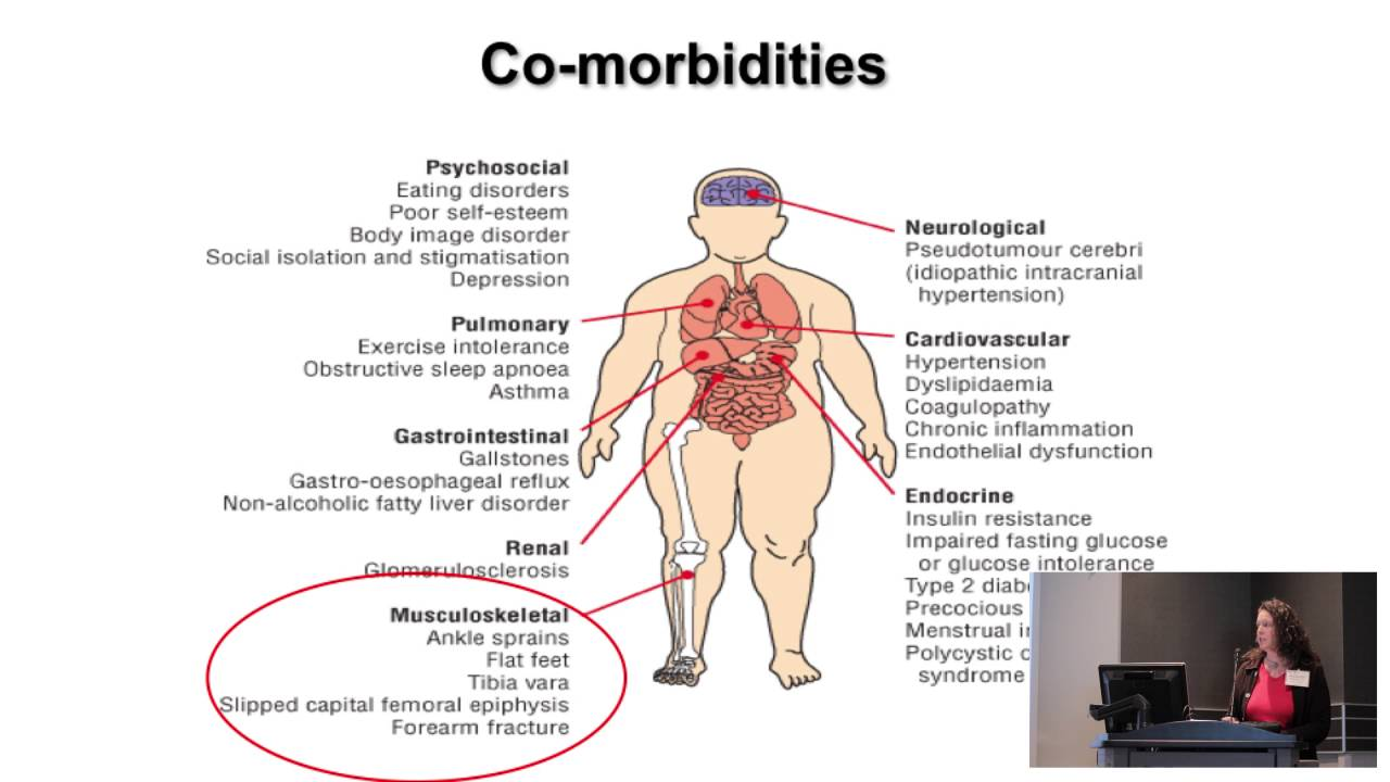 Assessment Of Obesity Co Morbidities In Primary Care Northeast Kentucky Area Health Education Center
