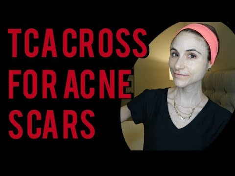 TCA CROSS FOR BOXCAR AND ICE PICK ACNE SCARS  Dr Dray