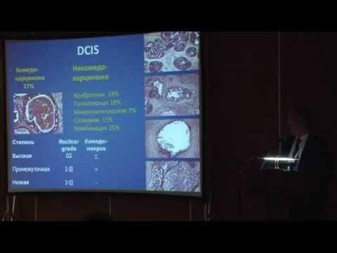 Диагностика и лечение рака молочной железы In Situ