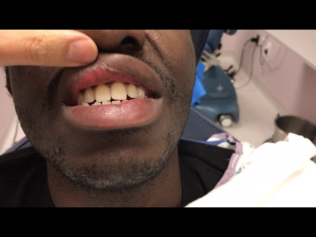 African-American Upper Lip Reduction Incision Closeup in Dallas, Texas