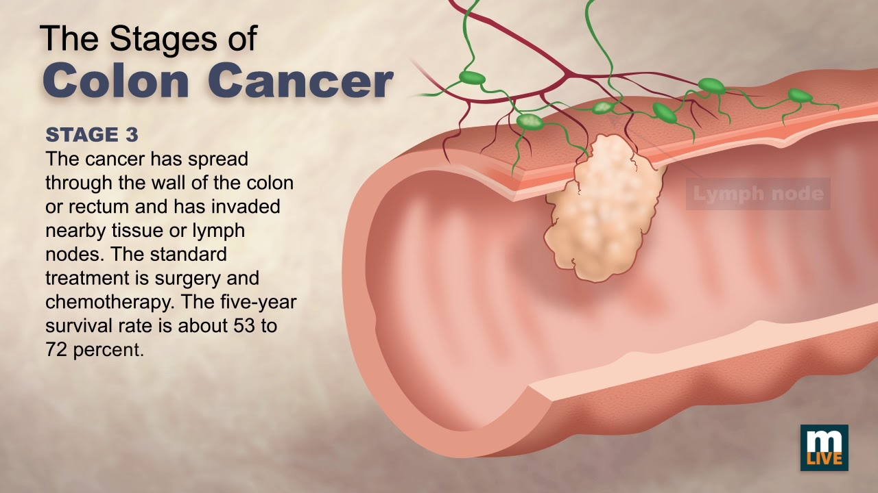 Stages Of Colon Cancer Youtube