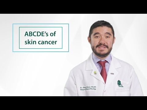 Minute of Wellness: The ABCDE's of skin cancer