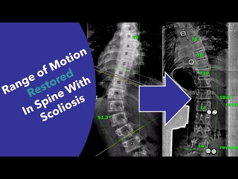 Amazing device for SCOLIOSIS restores range of motion and improves treatment without surgery