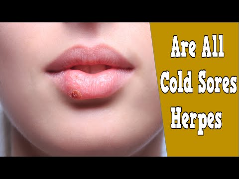 are all cold sores herpes cold sore home remedies tea