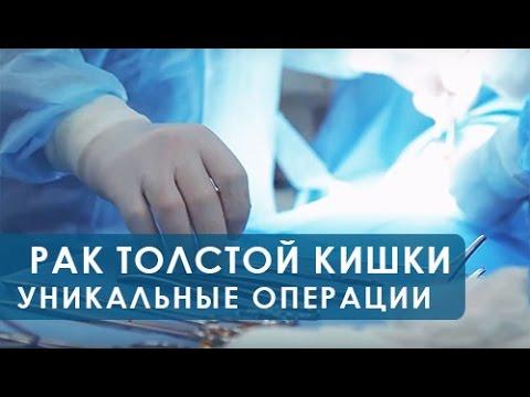 Рак кишечника - симптомы, стадии, лечение, признаки