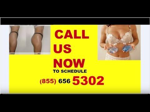 double chin liposuction houston 855-656-5302 Facial Contouring Houston CALL US!