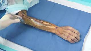 Radial Shaft Fracture Fixation Using Dorsolateral Midshaft Radius Plate, with Dr. Richard.
