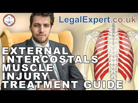 External Intercostals Muscle Injury Treatment Guide ( 2019 ) UK