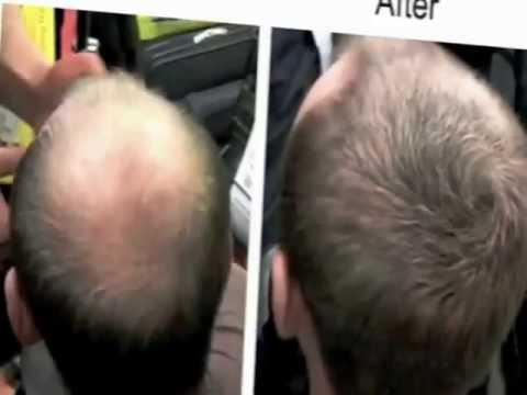 Los aceites naturales de la alopecia