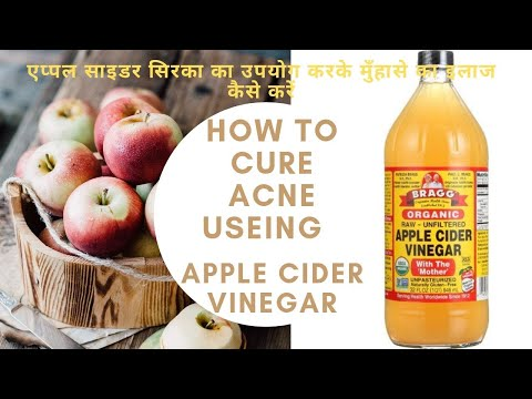 how-to-cure-acne-using-apple-cider-vinegar