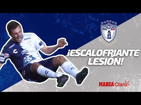 Escalofriante fractura de Eugenio Pizzuto | León vs Pachuca | Liga MX Jornada 3 | Clausura 2020