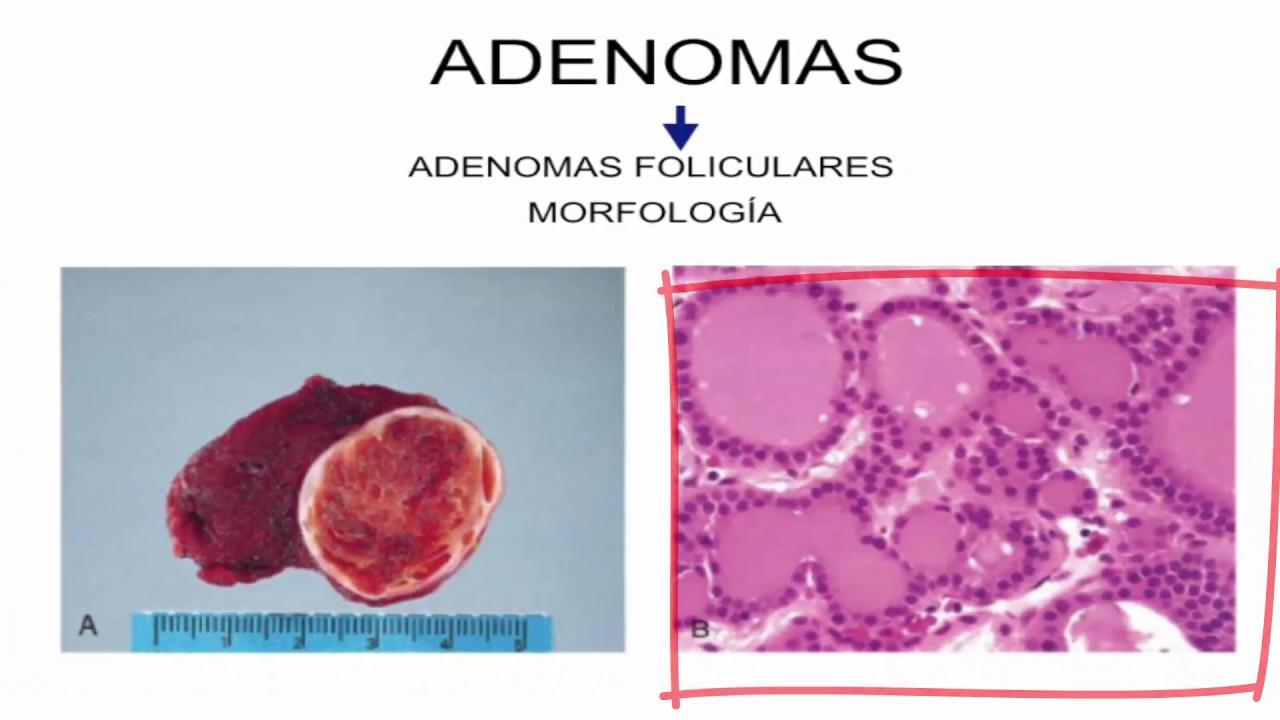 Patología Endocrina