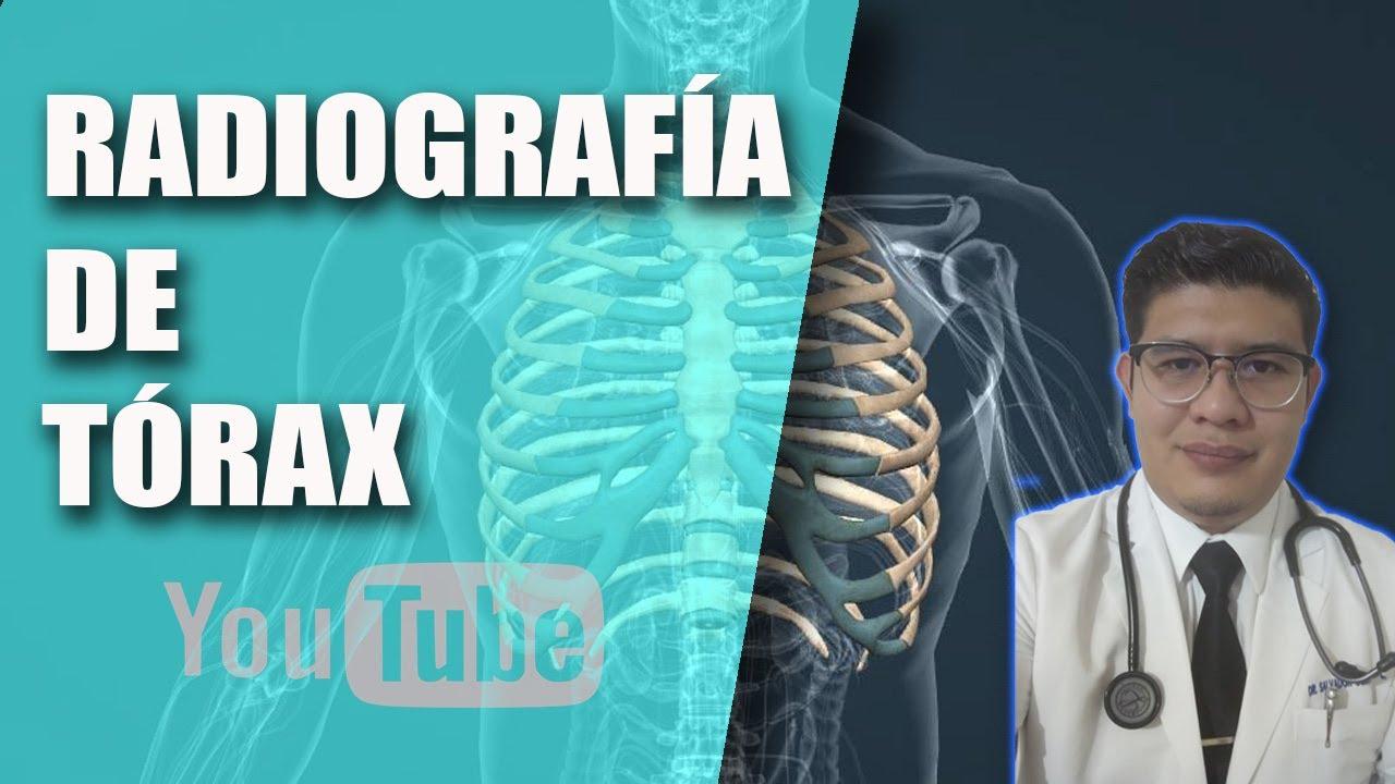Radiografía de Tórax PA, Técnica Radiográfica [Tele de Tórax][1 ...
