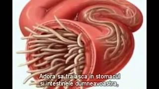 Mijloace pentru îndepărtarea viermilor la om, Tratamentul și prevenirea viermilor la om