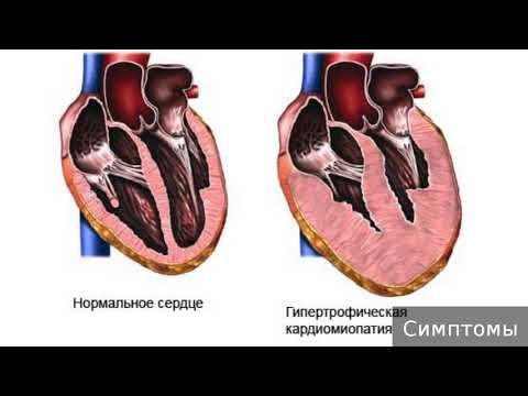 Кардиомиопатия. Как лечить кардиомиопатию.