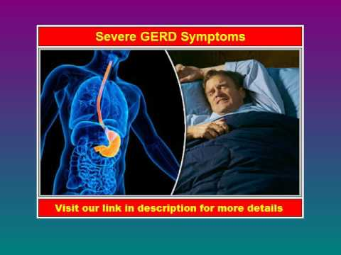 Severe GERD Symptoms