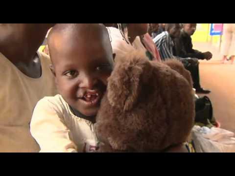Operation Smile: Habimana's Story