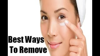 3 Best Ways to Get Rid of Dark circles Quickly (Guaranteed)