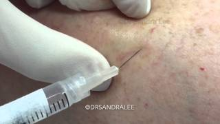 Sclerotherapy Treating Spider Veins Medical Education