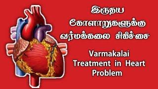 Gambar cover வர்மக்கலை இருதய சிகிச்சை/Varmakalai Heart Treatment/S.Gopalakrishnan+919894285755
