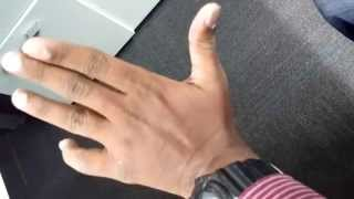 Low Mobility of Fingers after Hand Fracture