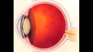 Avelox Induced Eye Injury Lawsuit: Information from Pritzker|Olsen with Attorney Brendan Flaherty