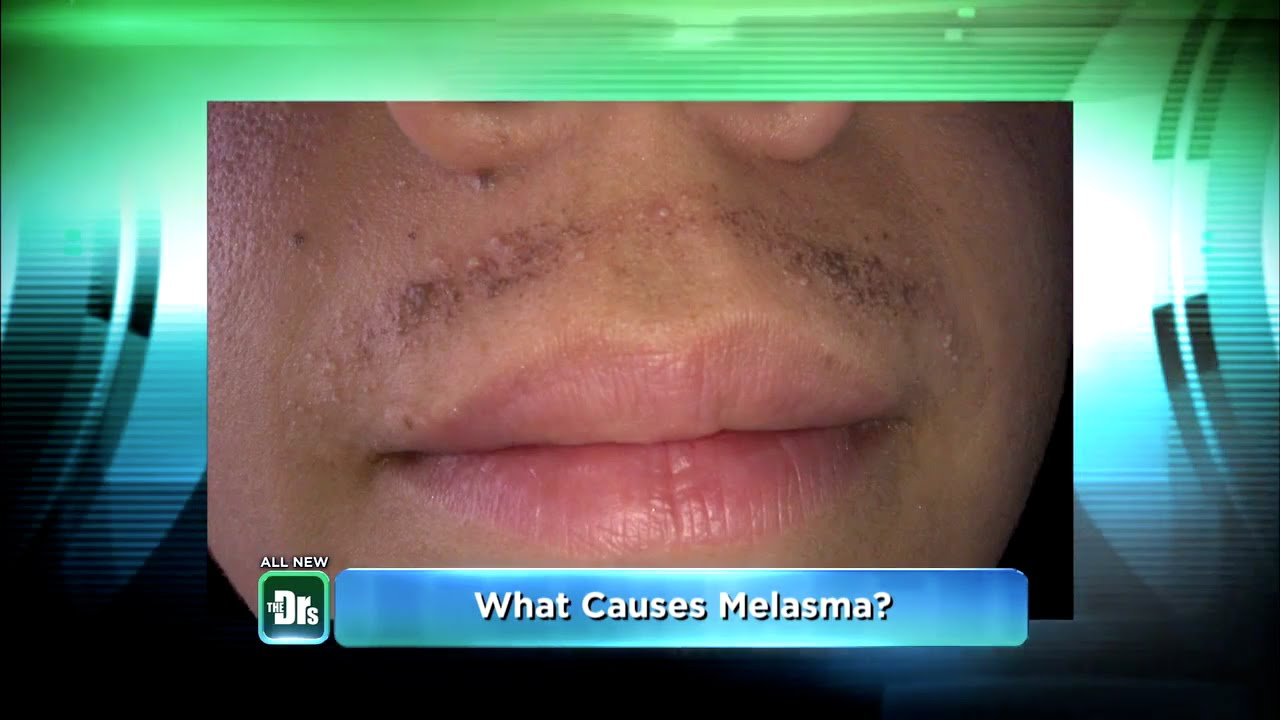 My Humiliating Melasma Mustache On The Doctors Youtube