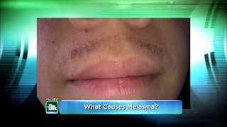 My Humiliating Melasma Mustache on The Doctors