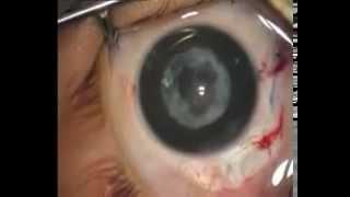 Детская катаракта операция факоэмульсификации(Видео операции удаления катаракты у детей. Подробнее о заболевании, причинах, диагностике и лечении читайт..., 2015-07-23T10:38:03.000Z)