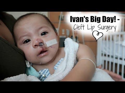 IVAN'S BIG DAY - CLEFT LIP SURGERY ♡